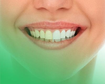 Zubár a zubná ambulancia v Poprade