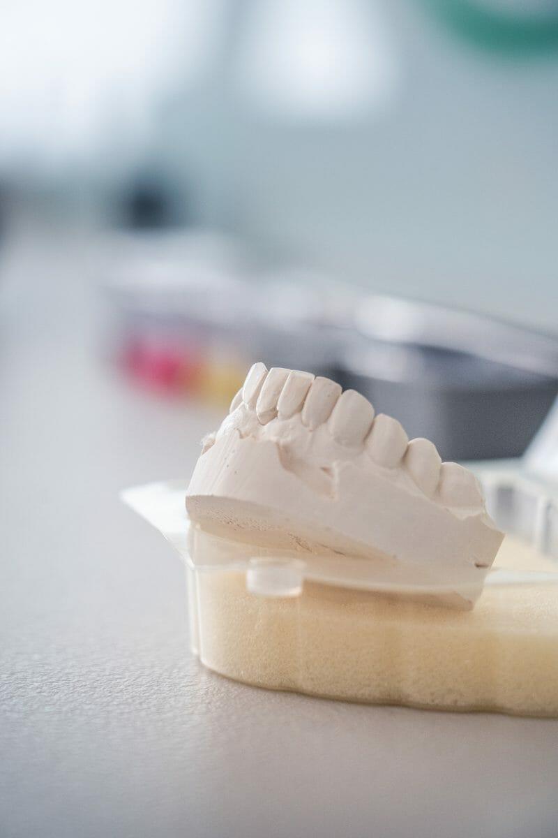 Zubné implantáty v Poprade